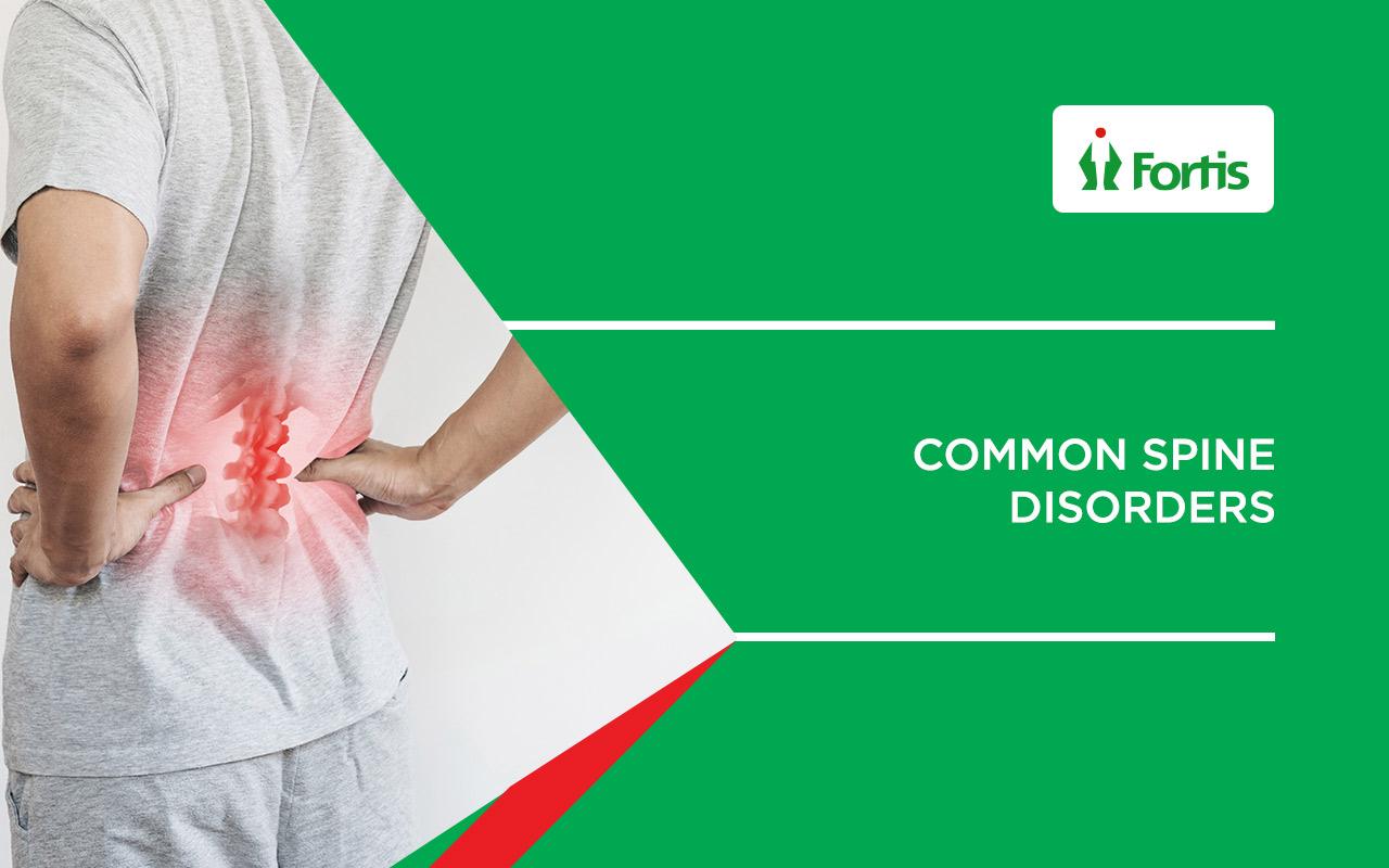 Common Spine disorders   Fortis Mumbai