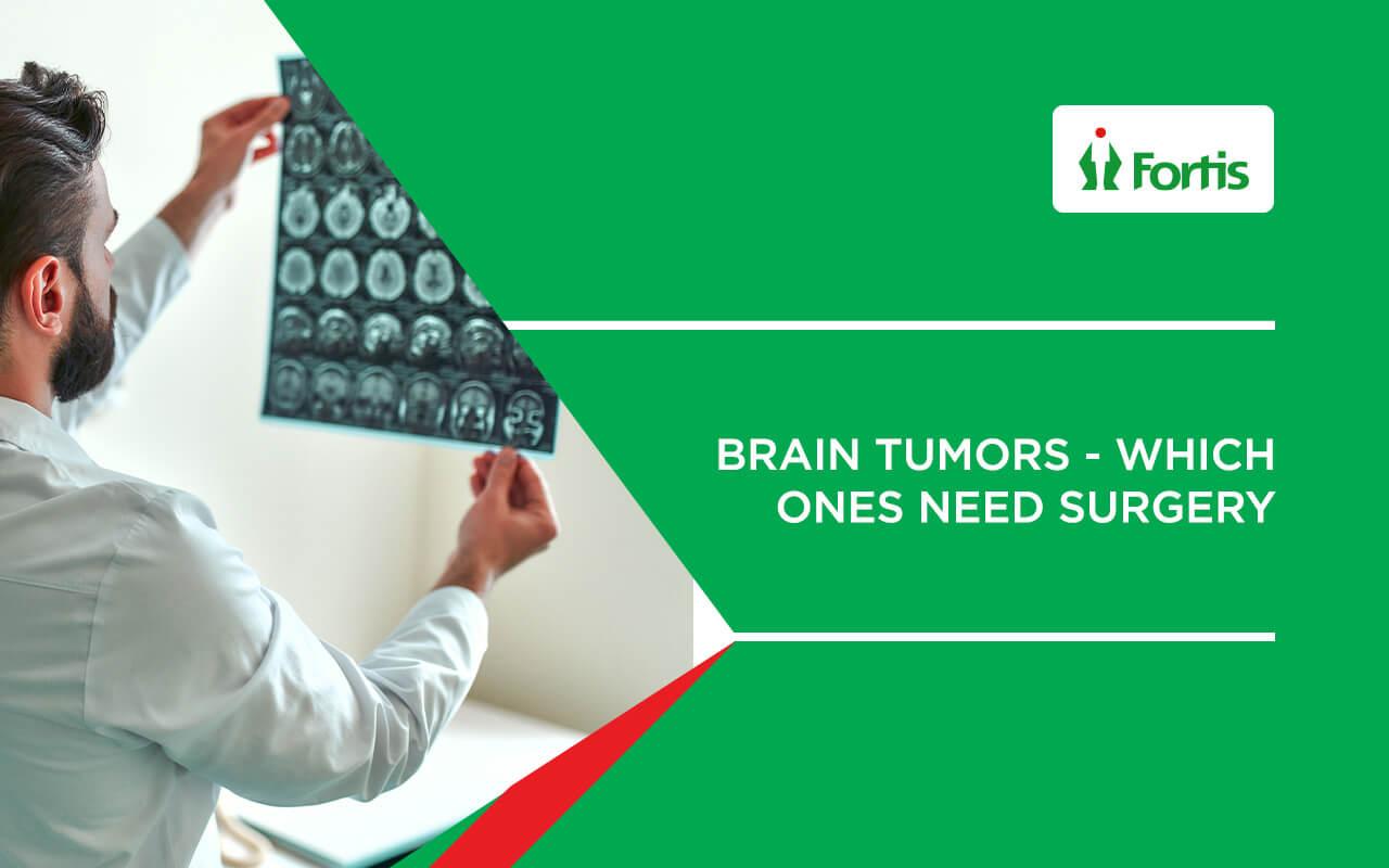 Brain Tumours | Which ones need surgery - Fortis Hospital Kalyan, Mumbai