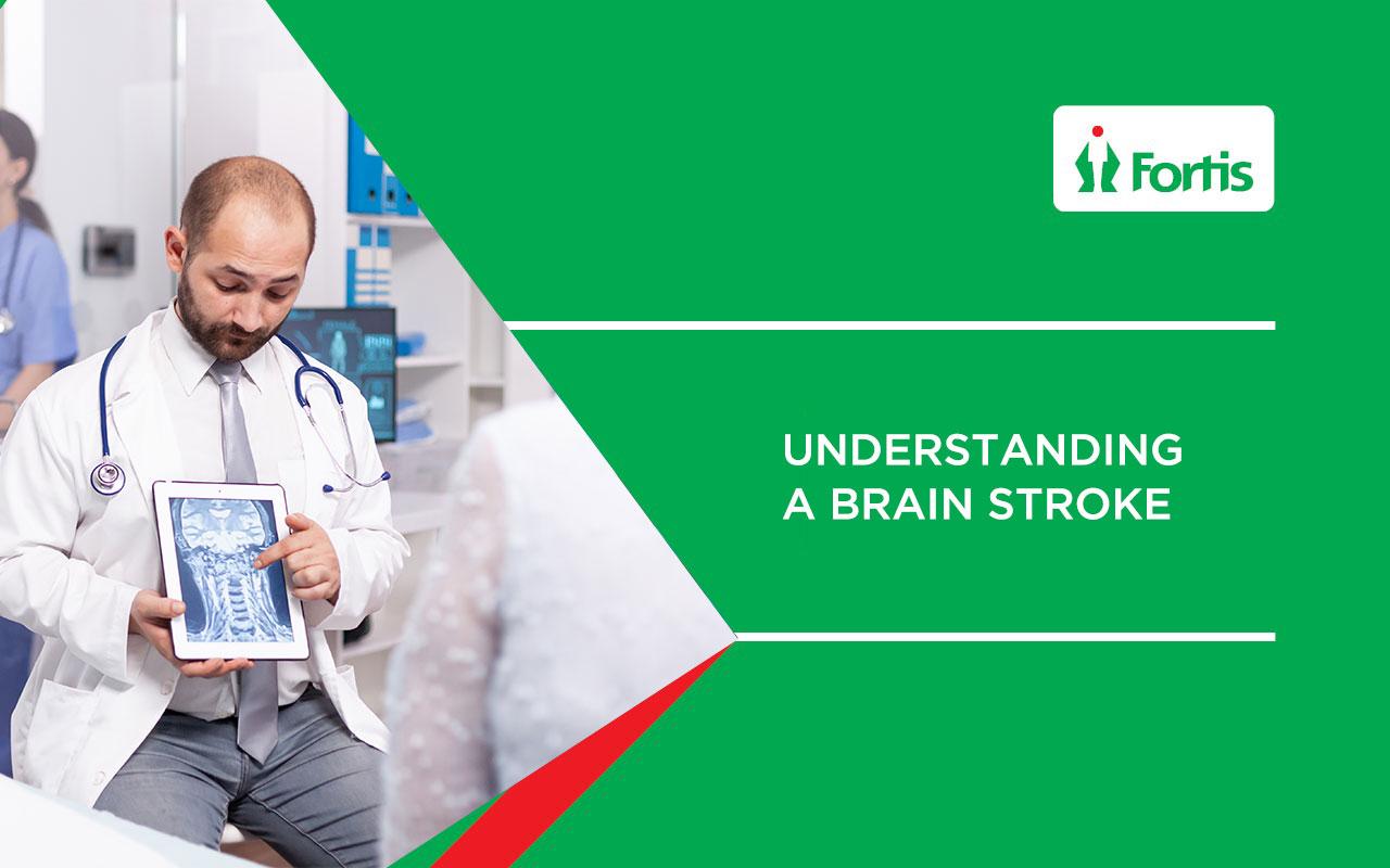 Understanding a Brain Stroke